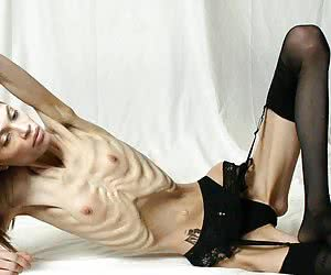Skinny Anorexic Girls Nude Thinspiration Pictures