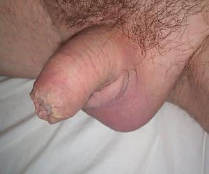 Me and my small penis gellery