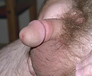 Small penis or tiny penis collection
