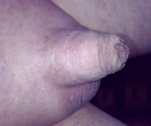Small penis or tiny penis gellery