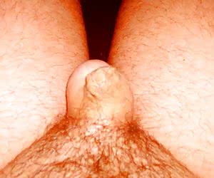 Yes, I Have A Small Penis set